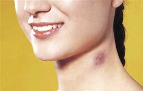 Как сделать синяки на шее