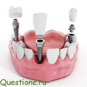 Где починить зубы в Москве?