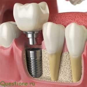 Почему необходимо своевременное протезирование зубов?